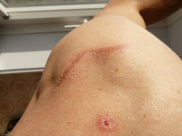 healed shoulder scar with the help of bergamot oil