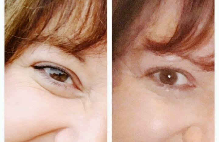 vitamin e effects on eye wrinkles