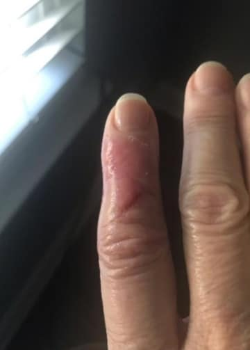 wound after vitamin e use