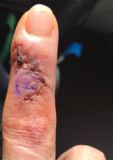 wound prior to vitamin e use