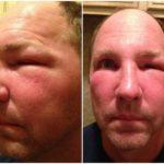 bee stung swollen face