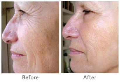improved wrinkles